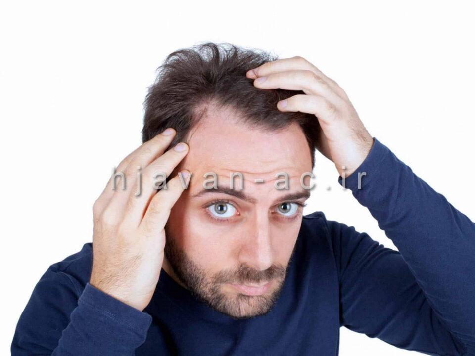 مراقبت از موی آقایان