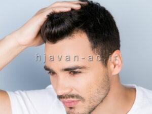مراقبت از مو آقایان
